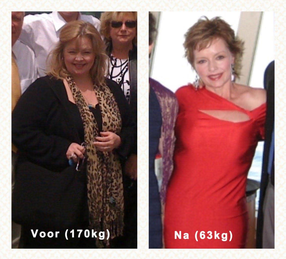 galblaasproblemen dieet