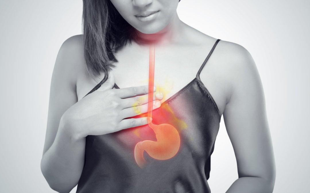 Last van brandend maagzuur?
